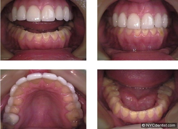 Bulimia Teeth